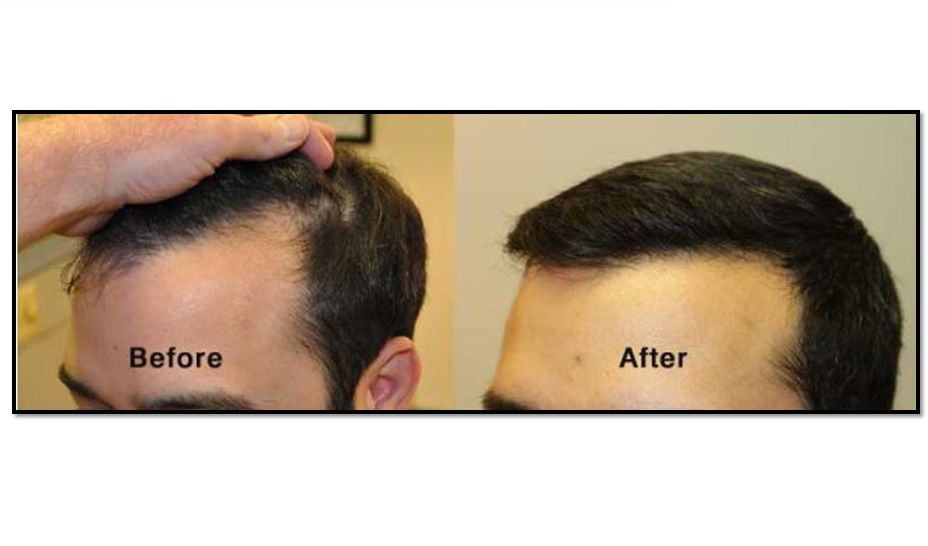Hair Transplant Before And After Difference For Hair Loss Hair Transplant Hair Loss Hair Transplant Procedure