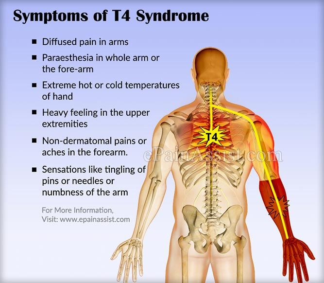 Symptoms Of T4 Syndrome Or Upper Thoracic Syndrome