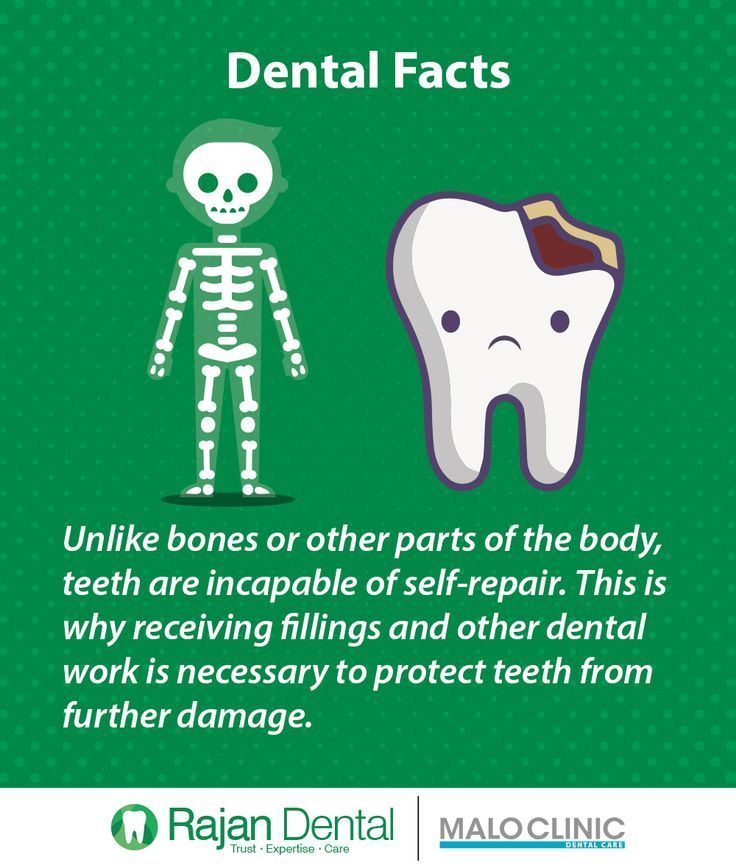 #cost #Dental #fractions #Implants #Oldfashioned #oralhealthmonth #dentaloffice #oldfashioned #fractions #implants #dentalfacts