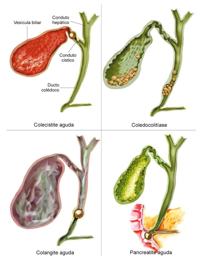Cálculo na Vesicula Biliar | Anatomia Humana | Pinterest | Vesicula ...