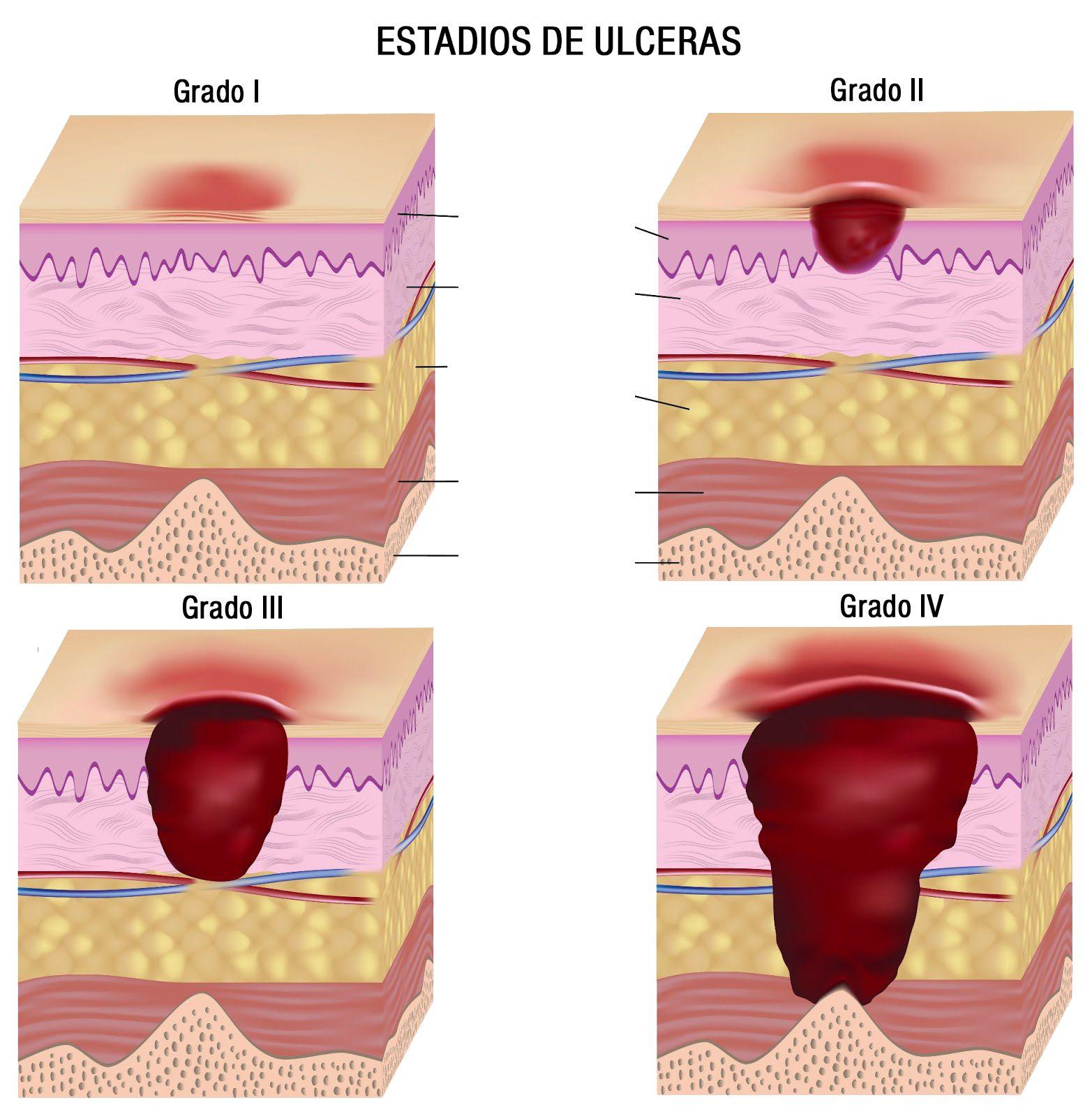 Ulceras-por-presion.jpg 1,565×1,600 pixeles - Escalas del..