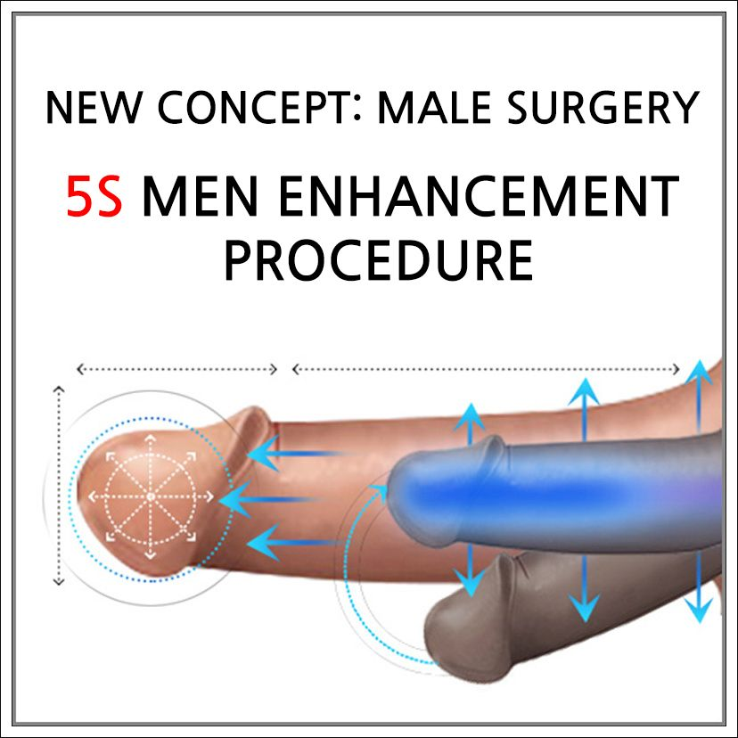 penile girth enlargement surgery