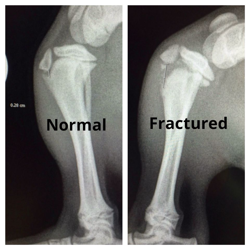 Proximal tibial fracture in a 17week old puppy with open ...