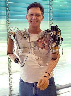 Protesis biónicas! Sin duda alguna la mejor aplicación de la tecnología en la humanidad. Aparte de ser super interesante se trata de una muy buena causa.