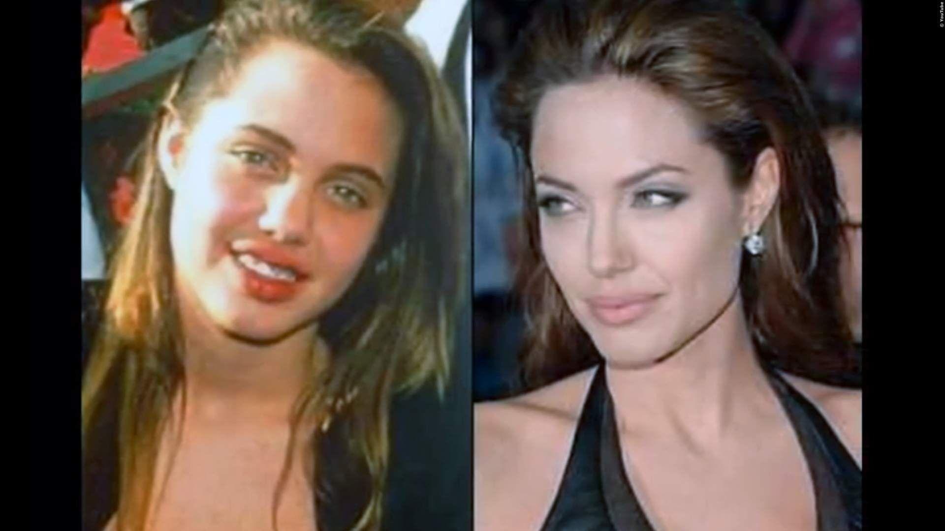 Video Hollywood Stars Vor Und Nach Ihren Schonheits Ops