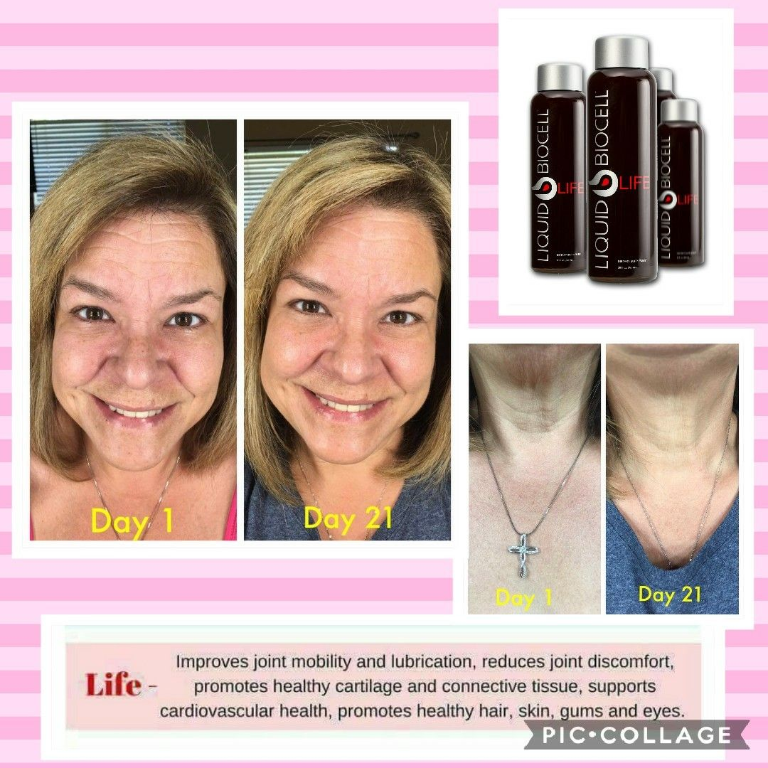 Hello 1 Collagen Wrinklereverse Fountainofyouth Botoxinabottle Liquidgold This Is 3 Weeks Of Using Liqui Promote Healthy Hair Decrease Wrinkles Skin