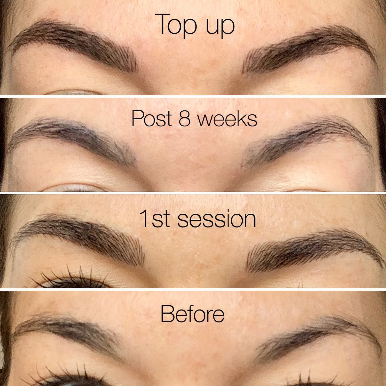 Here Are The Stages Of My Own Microbladed Eyebrows Not My Work As You Can See