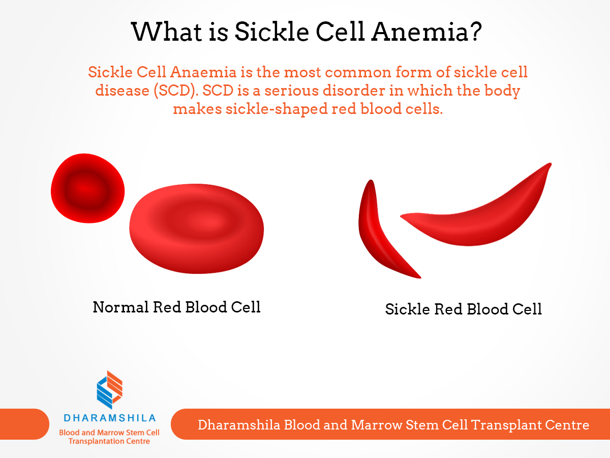 What is sickle cell anemia sickle cell anaemia is the most common what is sickle cell anemia sickle cell anaemia is the most common form of sickle pooptronica
