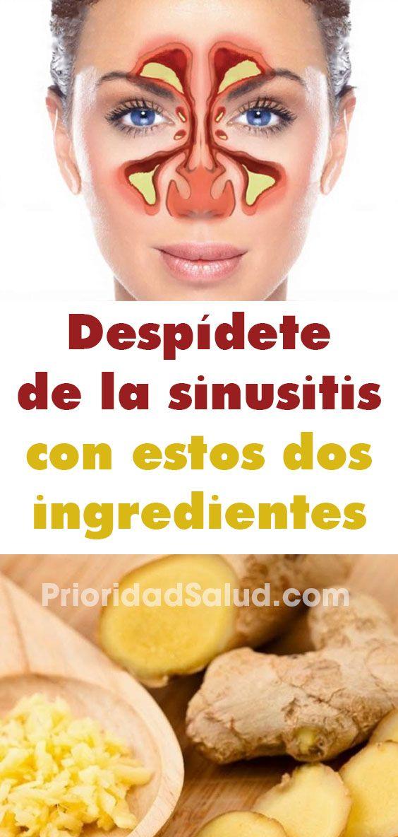 7 Ideas De Remedio Sinusitis Rinitis Alérgica Remedio Sinusitis Remedios Caseros