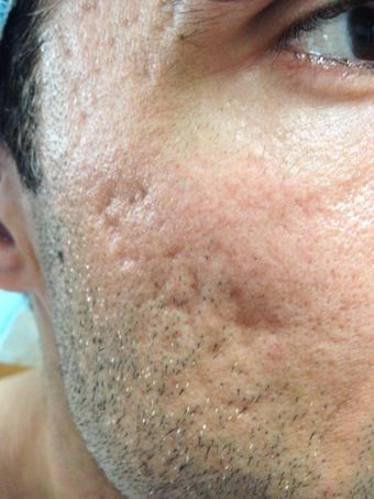 Facial scarring treatment