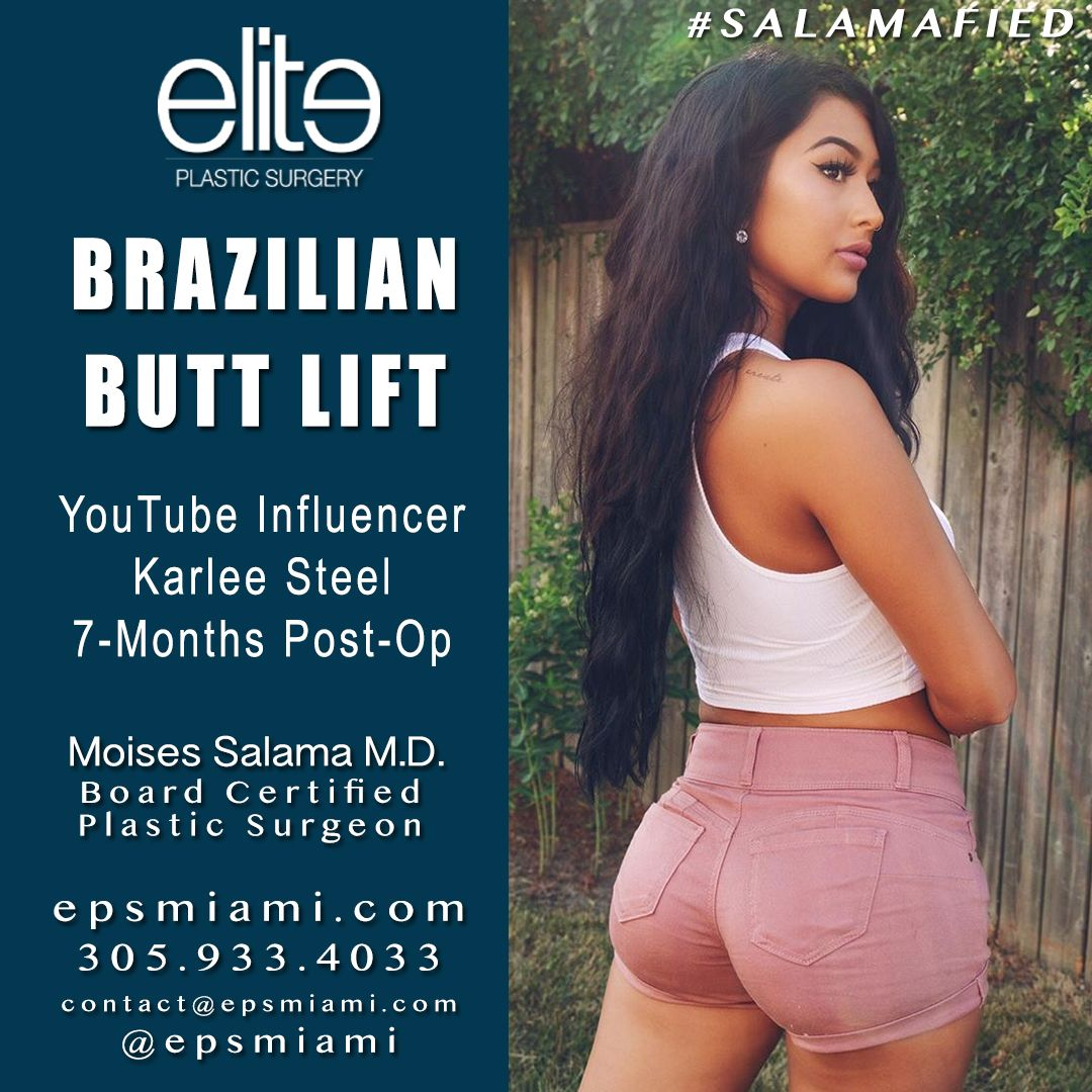 Here's @karleesteel almost 7-month post #BBL 🍑 🙌🏻 Catch