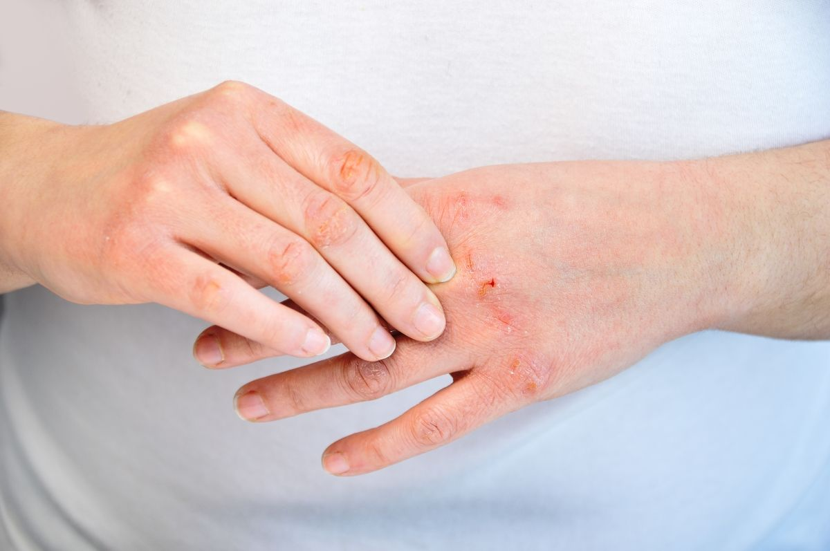Atopic Dermatitis Eczema Atopic Dermatitis Hand Dermatitis