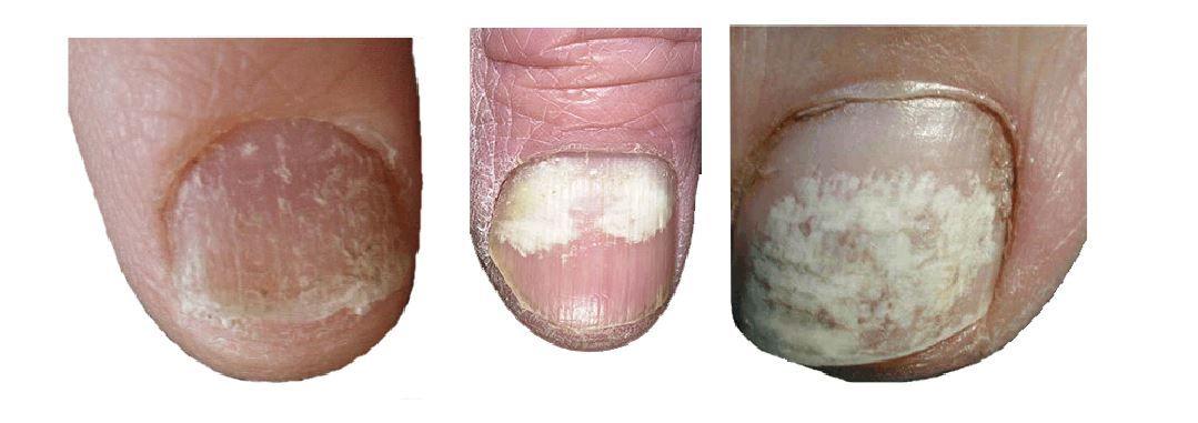 981983f34b039005495a3fc1e683af32 - How To Get Rid Of White Spots On My Toenails