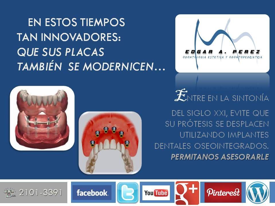 Siglo Xxi Demuestreselo Citas Al 21013391 Implantes