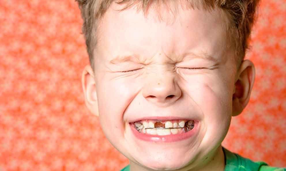 😁 ¡El chirriar se va acabar! 😁 El @Club_Ratoncito nos da las causas del #bruxismo en niños http://bit.ly/2c56M3y