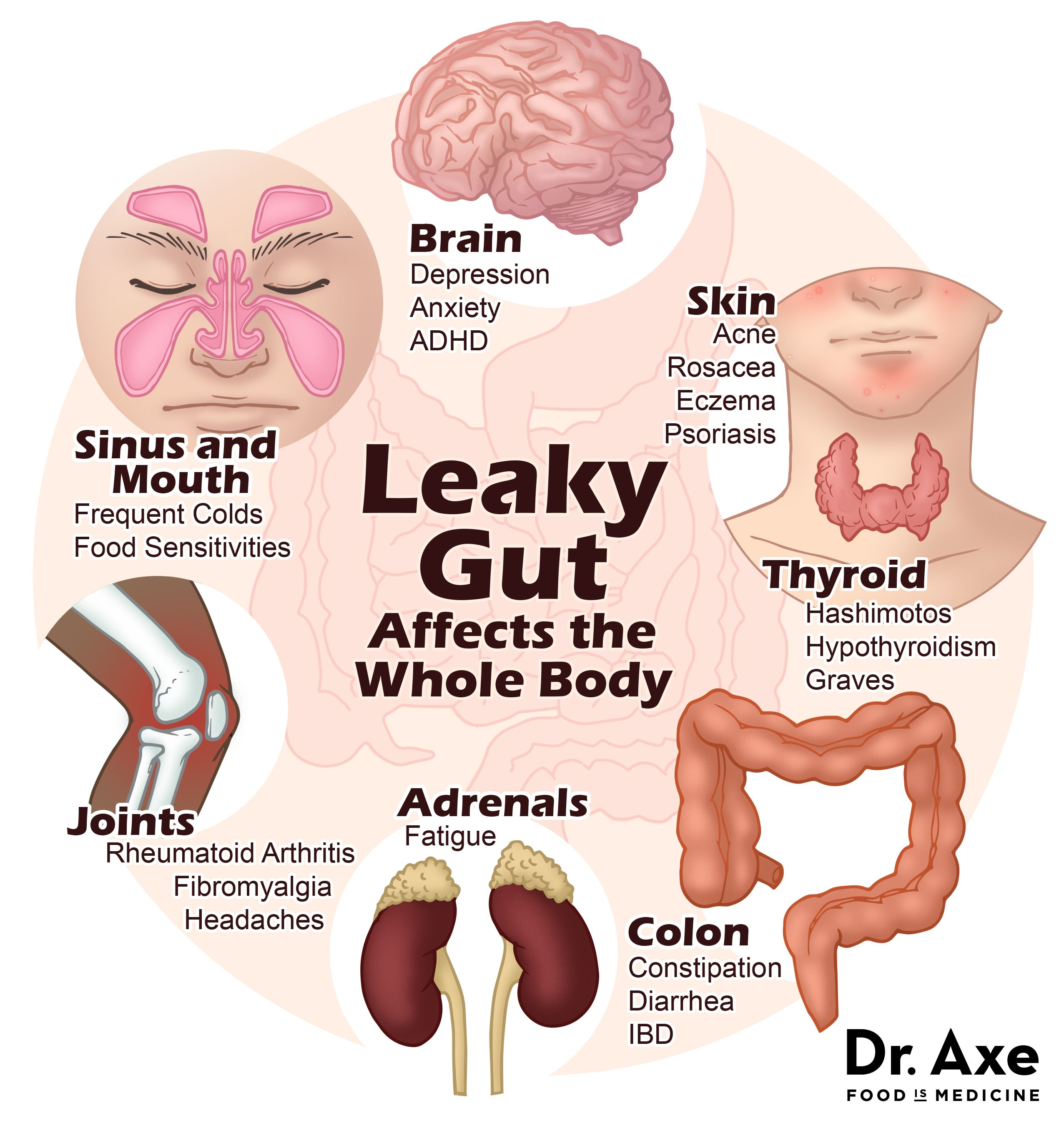 hight resolution of leaky gut syndrome symptoms diagram