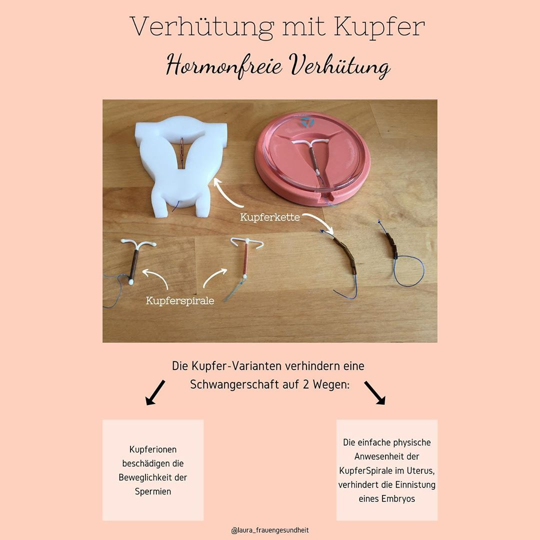 Erfahrungen kupferkette gynefix Gynefix Kupferkette