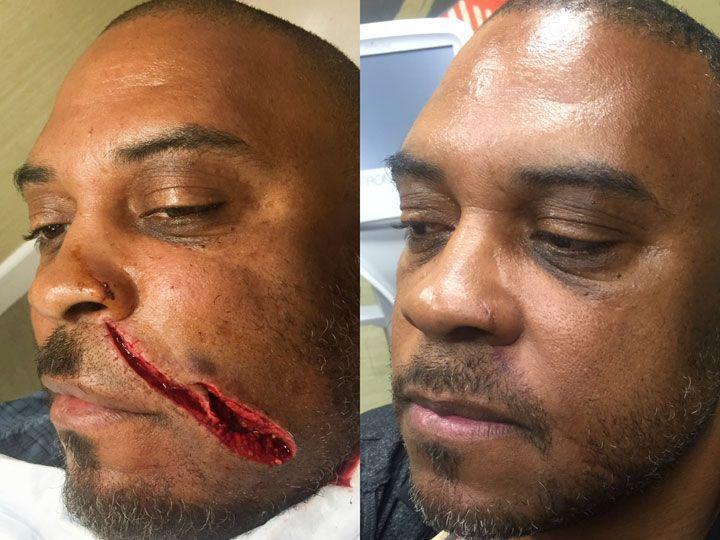 Картинки по запросу nose scar | Human body | Mole removal, Mole