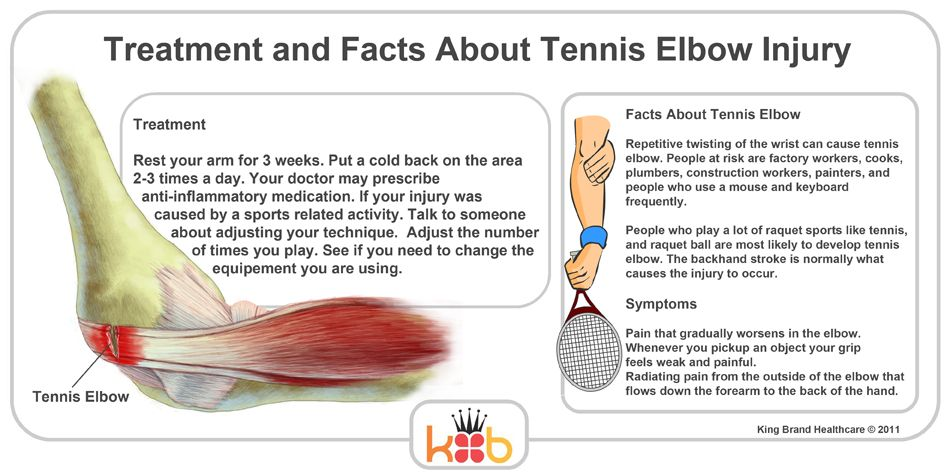 Best Brace For Tennis Elbow In 2020 Tennis Elbow Tennis Elbow Treatment Tennis Elbow Symptoms