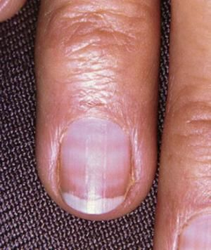 7 Things Your Nails Can Tell You Nail Health Signs Fingernail Health Fingernail Health Signs