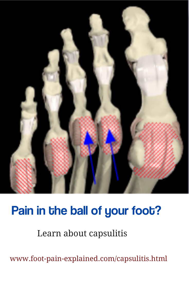 Capsulitis Is One Of The More Common Conditions That Will Cause Pain In The Ball Of The Foot  It