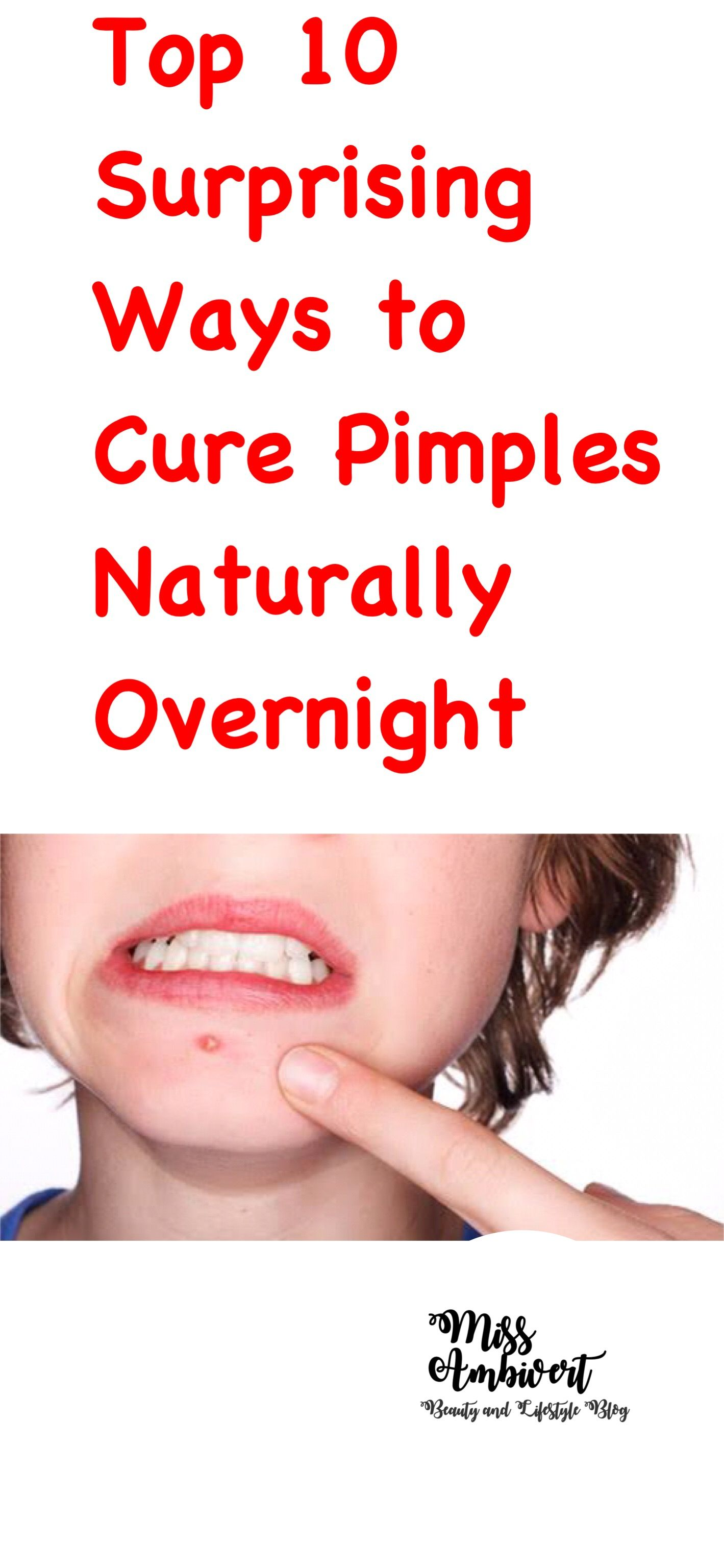 10 Causes Of And Simple Remedies For Pimples On Forehead foto