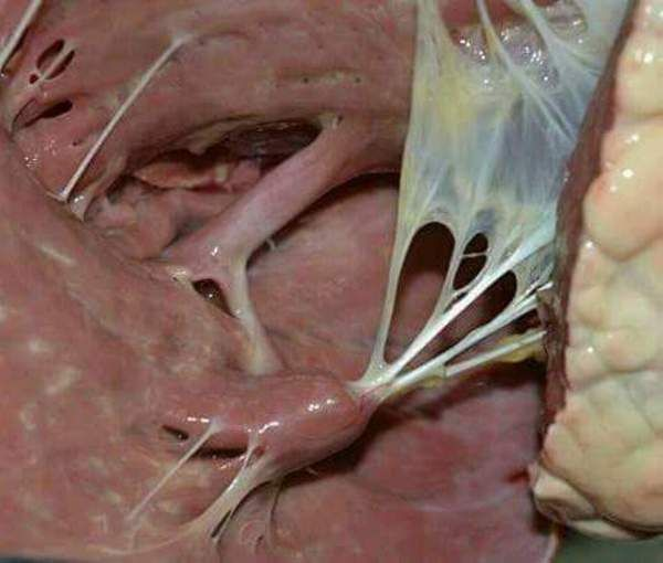 Papillary muscles and chordae tendineae inside the heart. | Anatomy ...