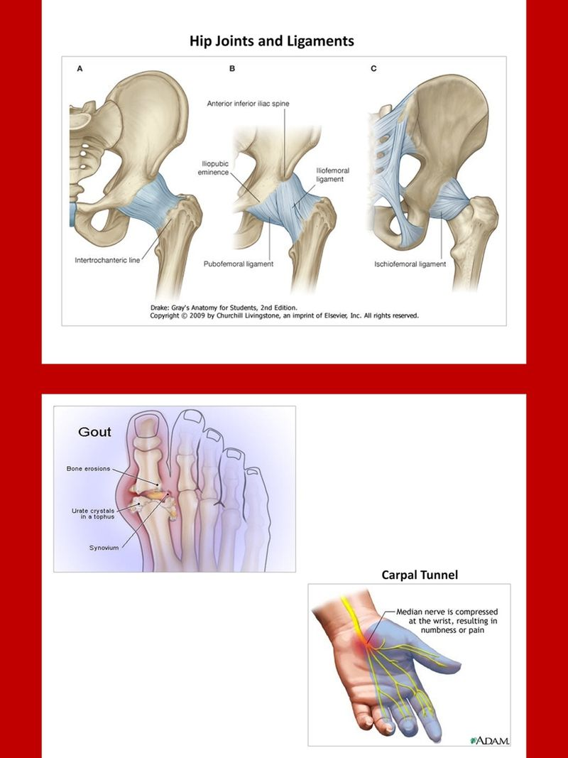 Arthritis Charts And Diagrams With Private Label Rights 24