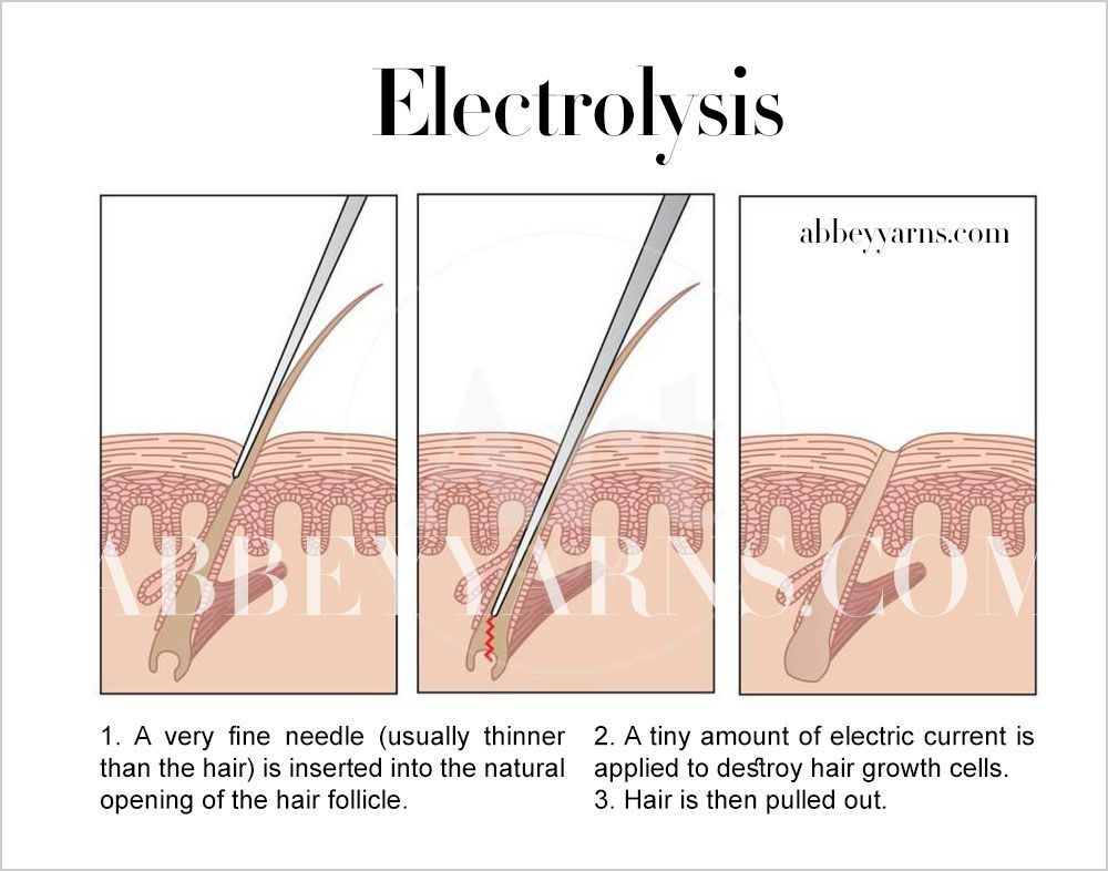 Electrolysis Vs Laser Hair Removal The Complete Guide 9 Hair Removal Electrolysis Hair Removal Laser Hair Removal