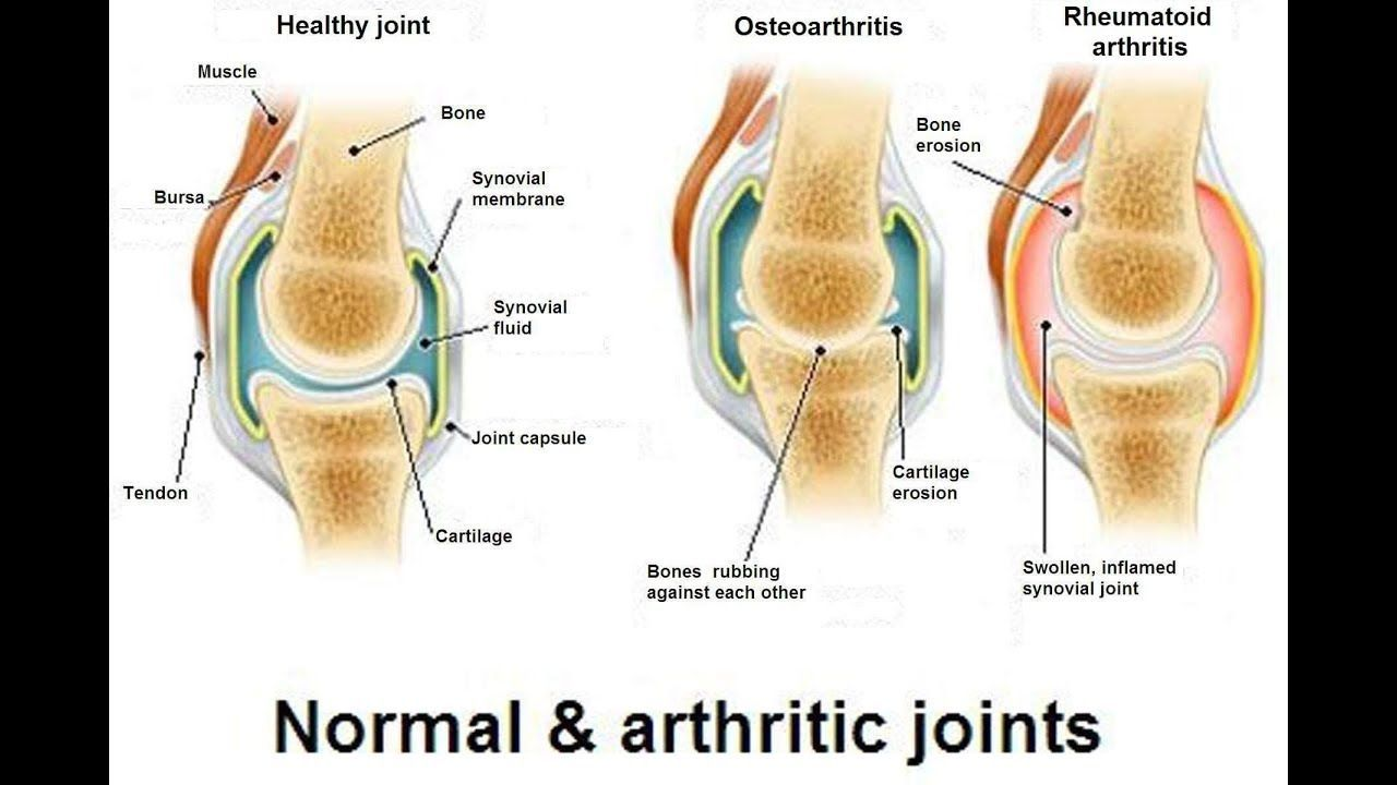 21++ Is osteoporosis and arthritis the same thing viral