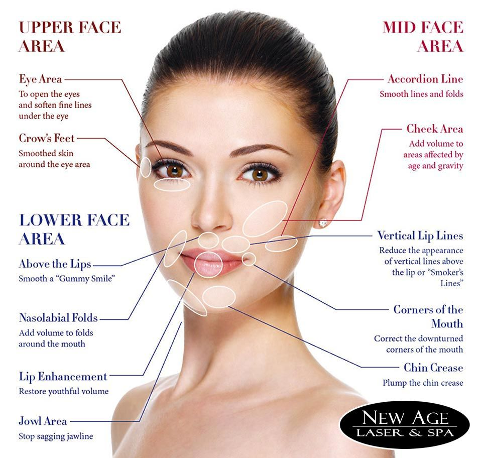 allergan face chart | clinic in 2019 | Facial fillers, Botox