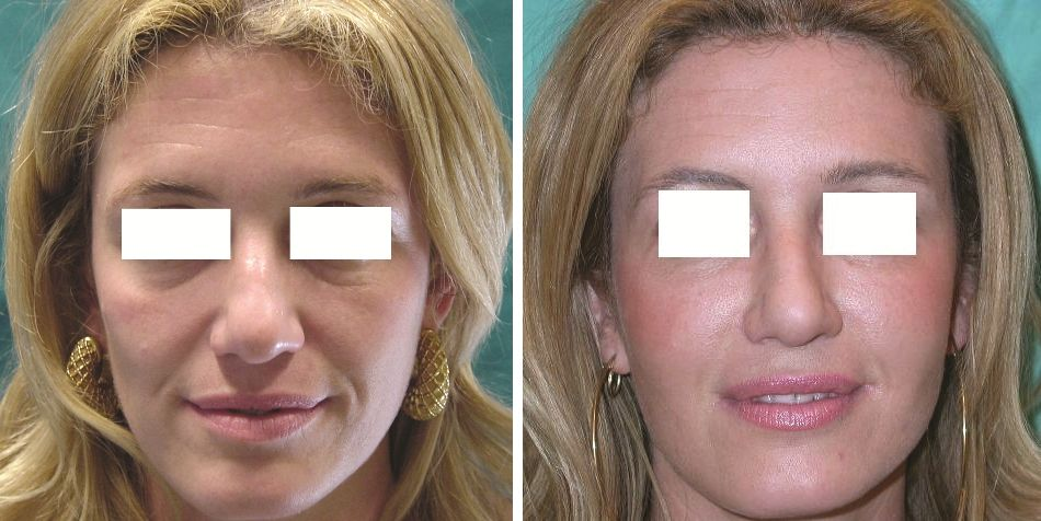 how to take before and after photos face