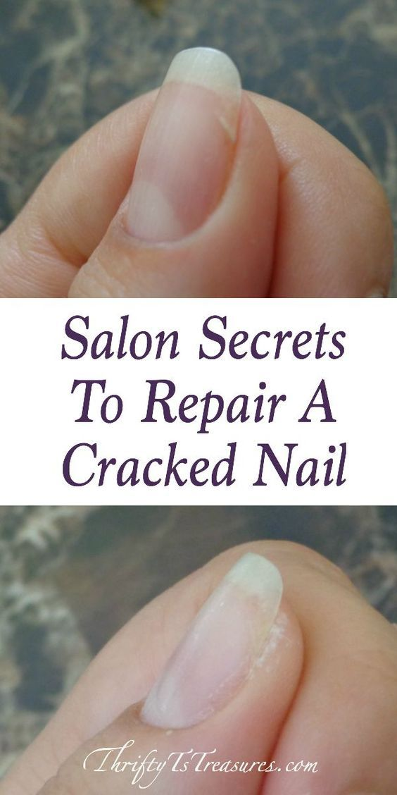 Salon Secrets To Repair A Cracked Nail | Beauty Recipes | Cracked ...
