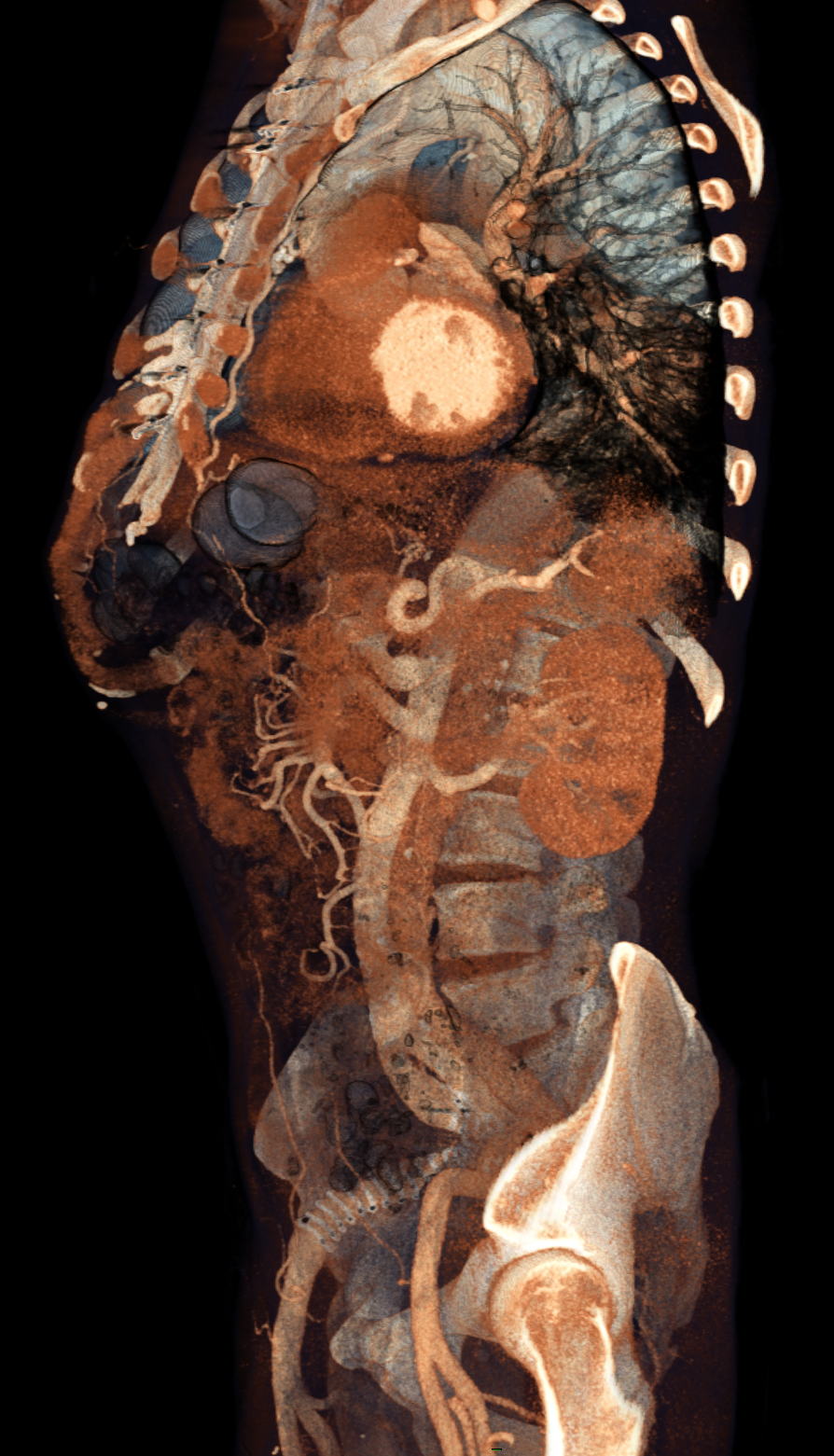 Volume Rendering of a contrast enhanced thoracoabdominal CT scan ...