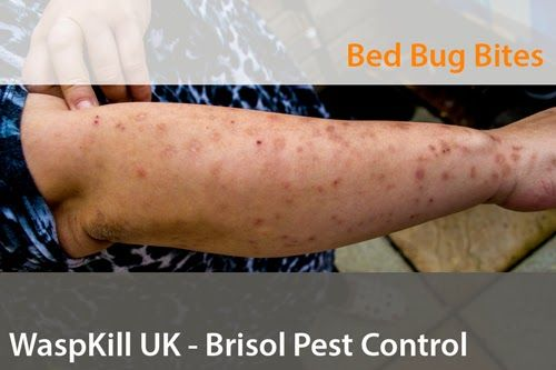Bristol Pest Control Severe Bed Bug Bites  Bath Pest Control Simple Small Brown Bugs In Bathroom Inspiration Design