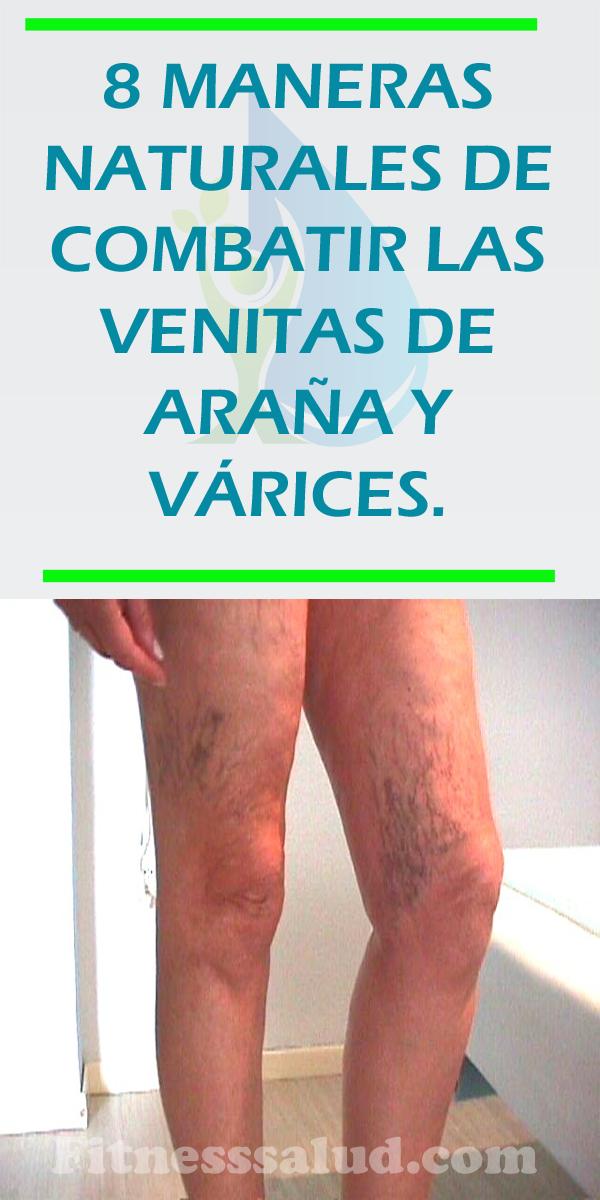 tratamiento arañas vasculares oviedo