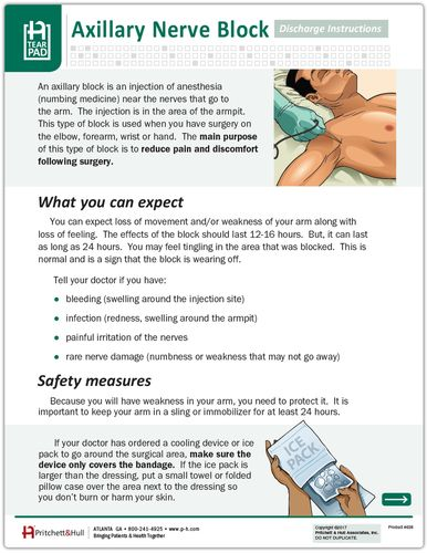 This interactive 2 sided handout explains what a nerve block is this interactive 2 sided handout explains what a nerve block is what you can expect fandeluxe Image collections