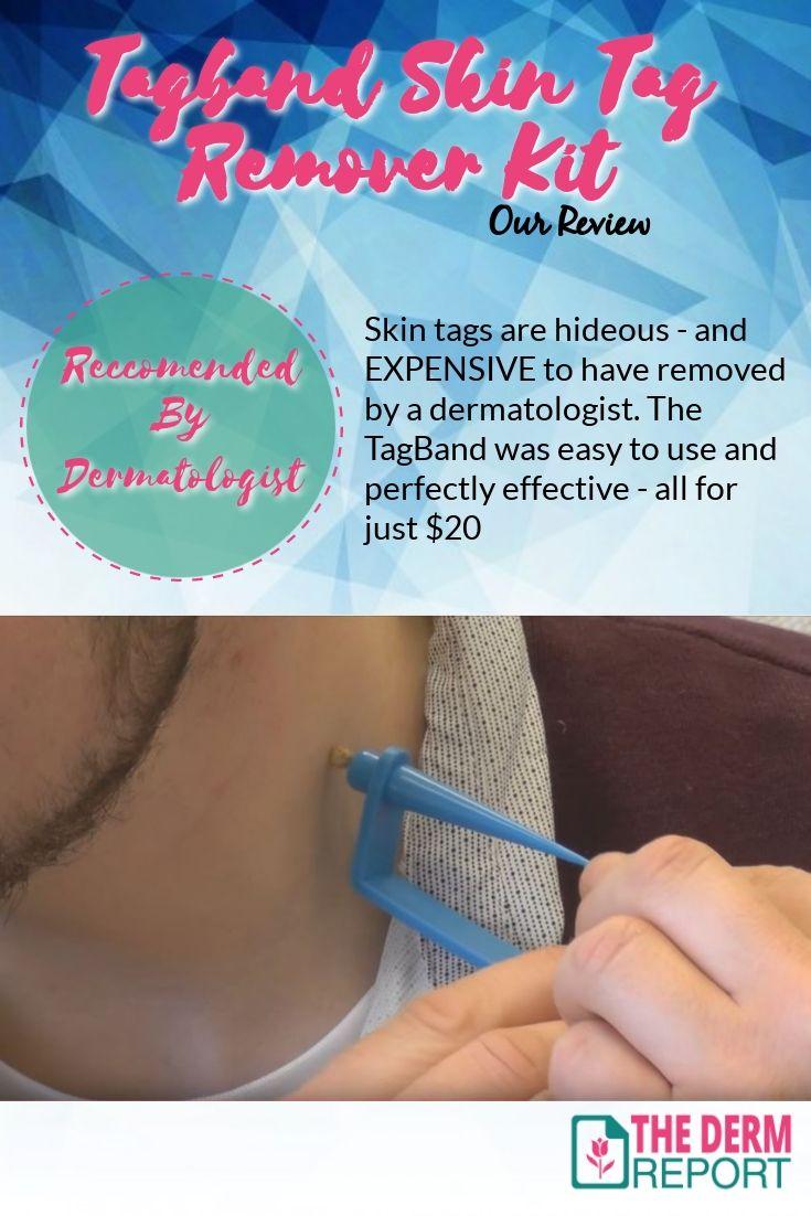 skin tag removal tool