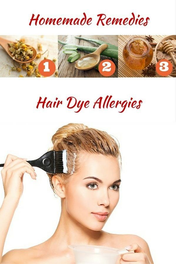 3 Effective Solutions To Treat Hair Dye Allergies Dyeing The Hair Is Not Only A Trend Among Young P Hair Dye Allergy Home Remedies For Hair Thick Hair Remedies