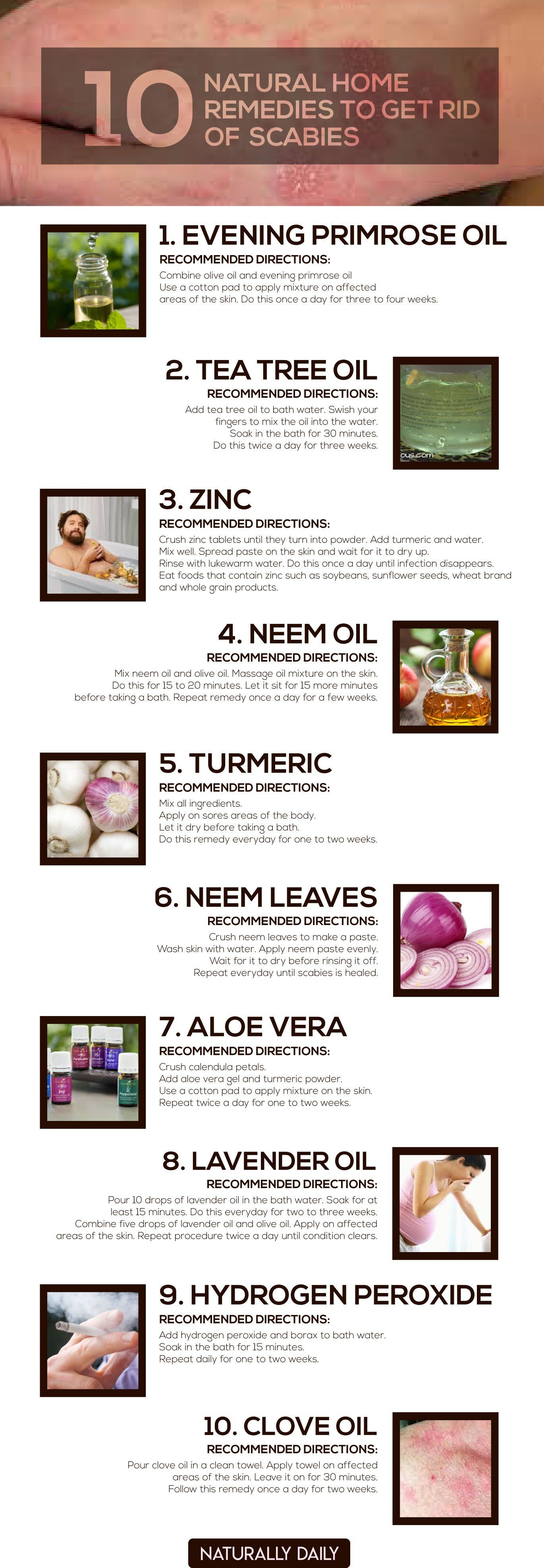 How To Treat Eczema Naturally With Simple Home Remedies Scabies Treatment