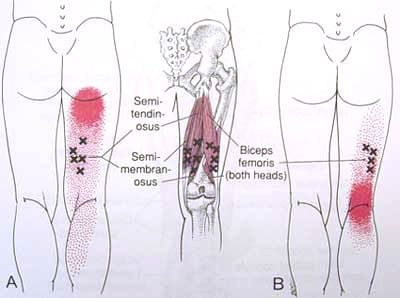 Hamstring Trigger Point Diagram | Triggers Points, therapy, & Xi ...