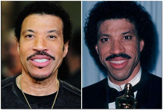 Lionel richie plastic surgery before after parenting tips lionel richie plastic surgery before after m4hsunfo