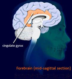 One type of Psychosurgery: the Cingulotomy.   Anxiety Disorders ...