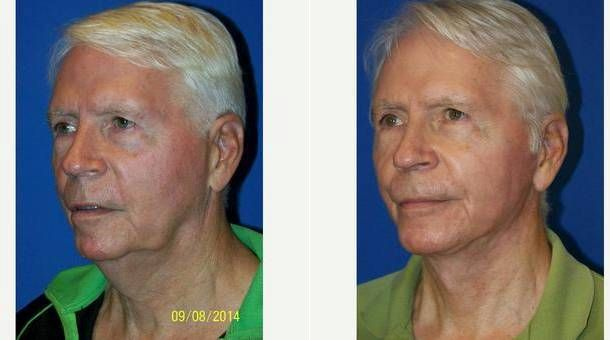 S Lift Facelift in Miami   Facelift By Miami Surgeons   Cost
