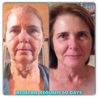 beforeafter results of rodanfields redefine regimen60 day money back guarantee httpsbornelasmyrandfcomshopredefine