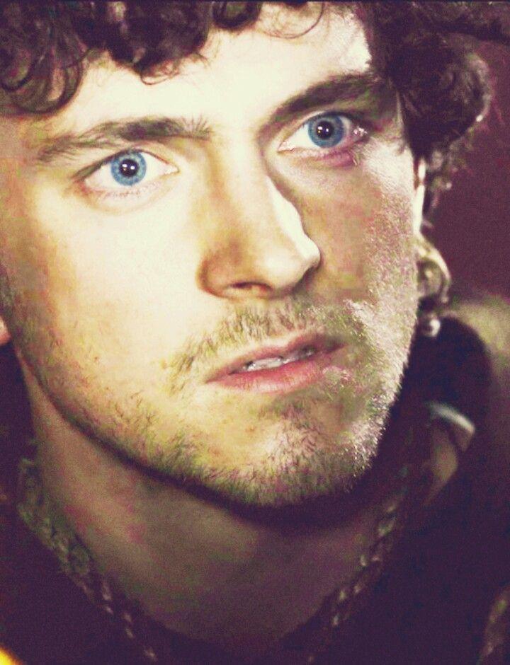 Brown hair, blue eyes, beard, man, bruise