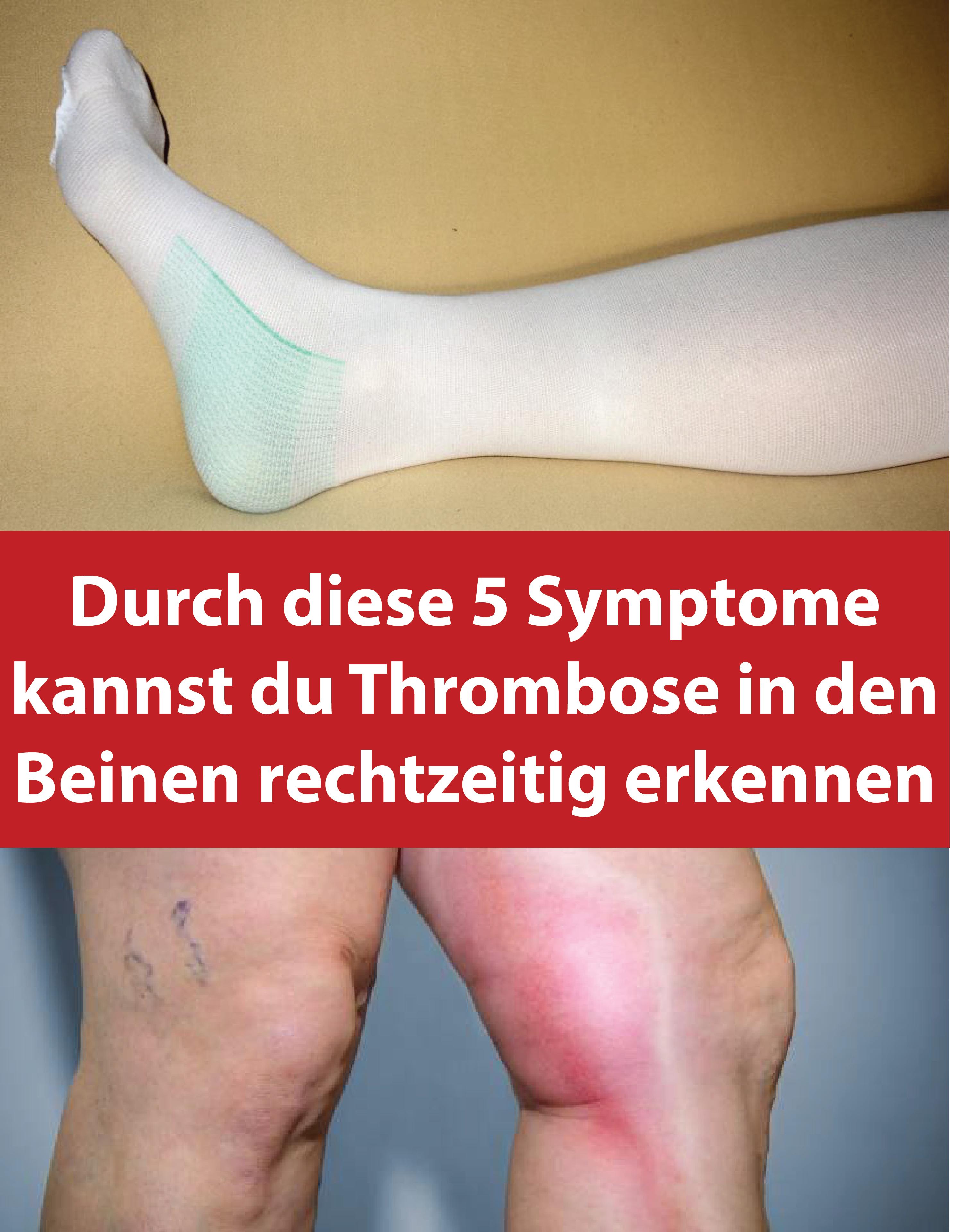 5 symptome kannst du thrombose