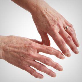 yoga poses for osteoarthritis symptoms  osteoarthritis