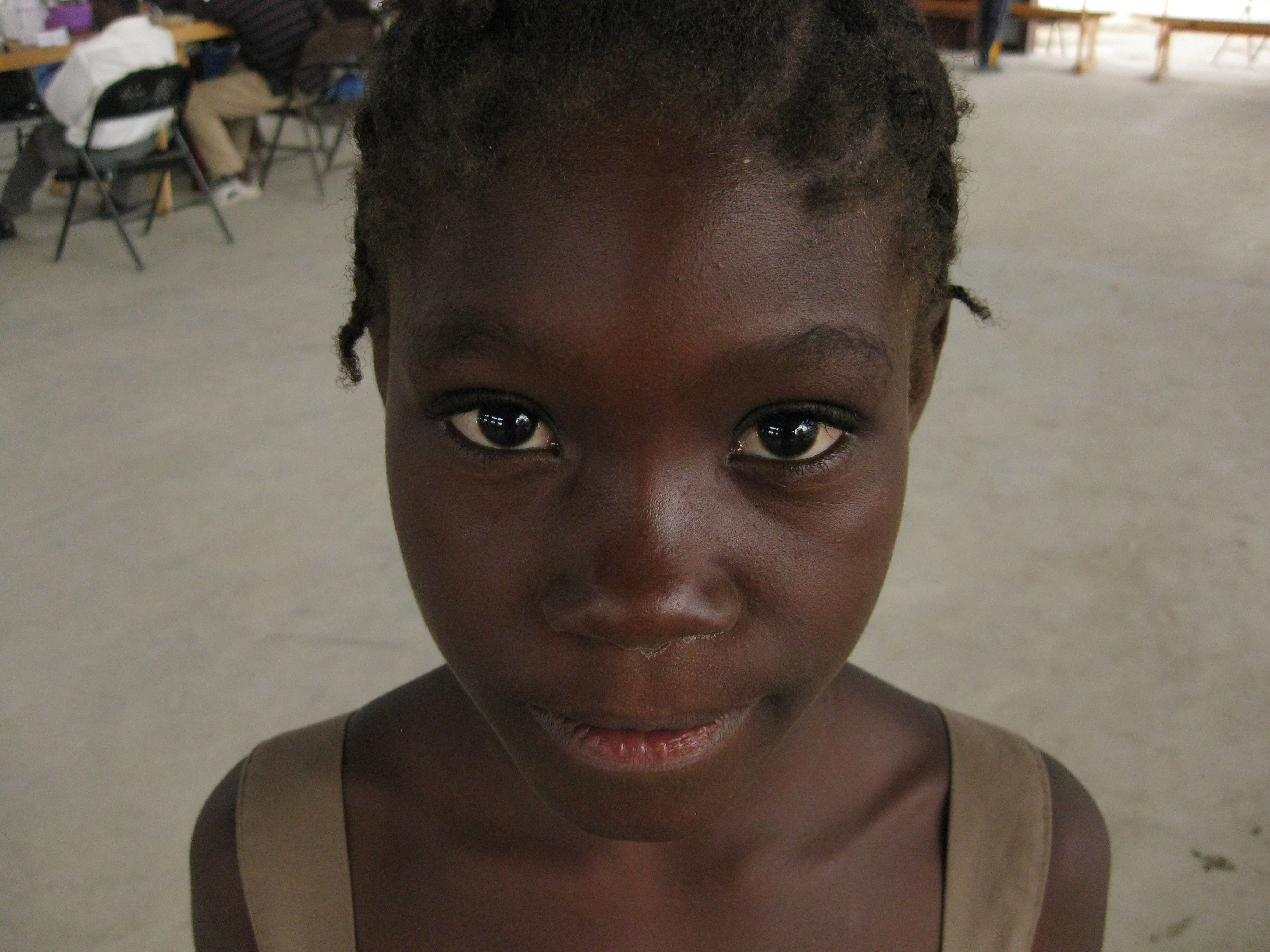 Hatian girl we treated at the Foursquare Haiti medical clinic.