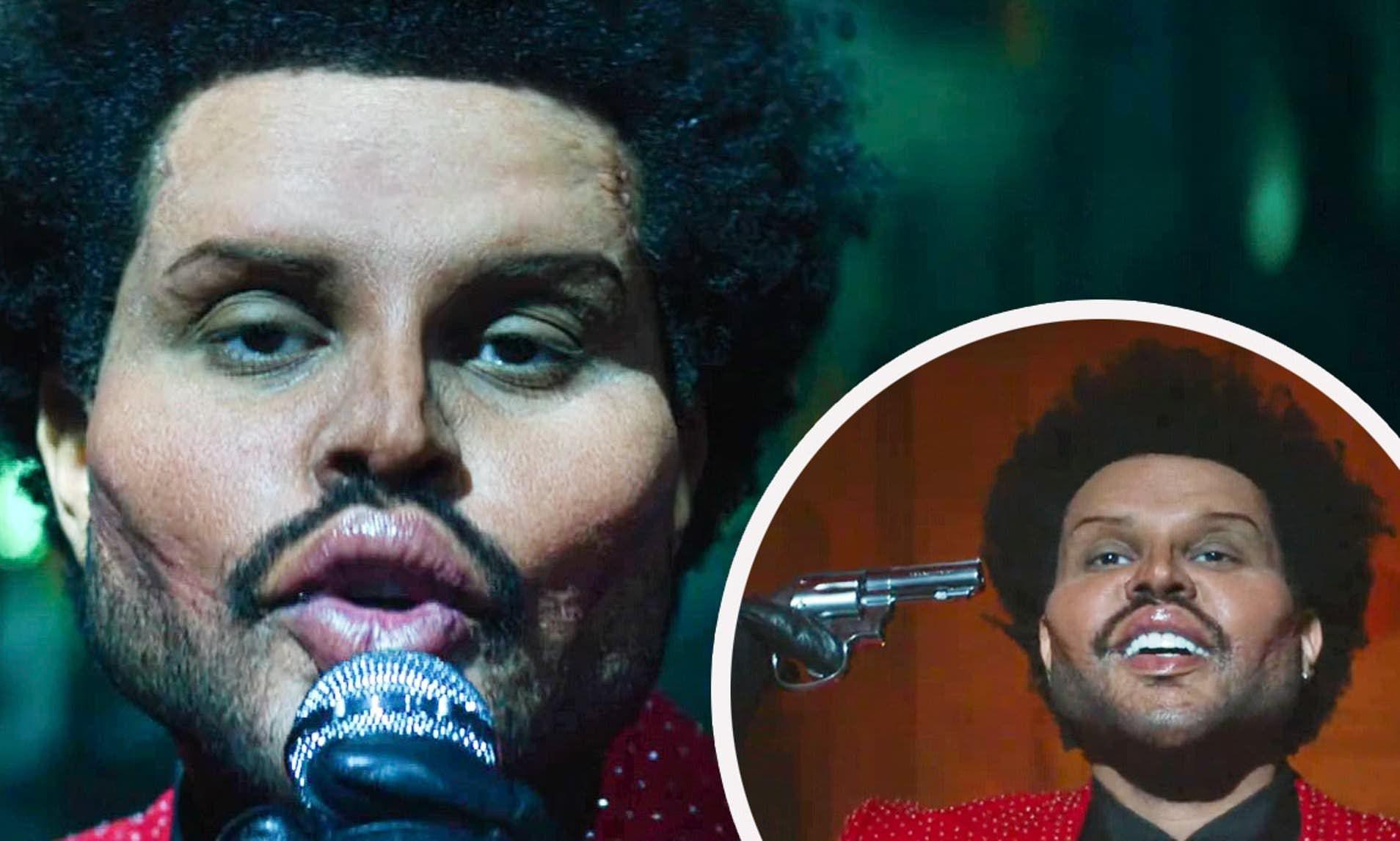 ذا ويكند بوجه مشوه صادم خدعة سينمائية أم عملية تجميلية دائمة In 2021 The Weeknd Fade To Black New Artists